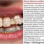 Какие брекеты выбрать? Стоматологическая клиника Краснодар.
