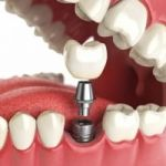 Импланты зубов Все на 4 имплантах.